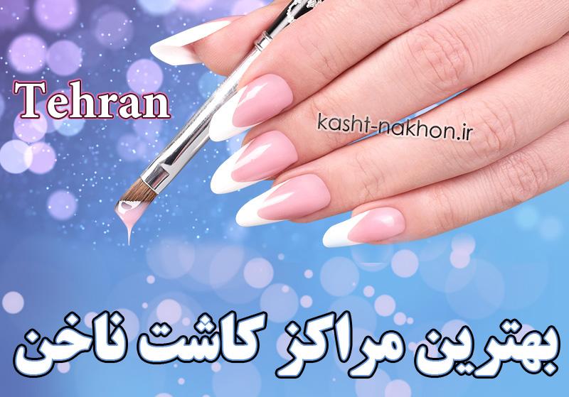 بهترین مراکز کاشت ناخن غرب تهران