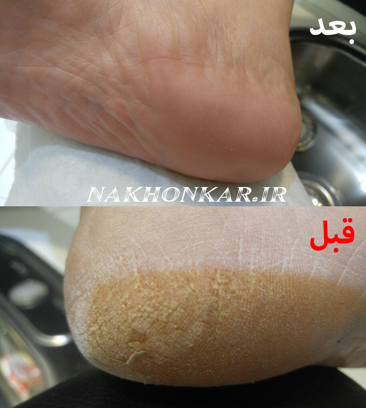 خدمات پدیکور پا ، خدمات مانیکور ناخن ، خدمات اسپا در تهران
